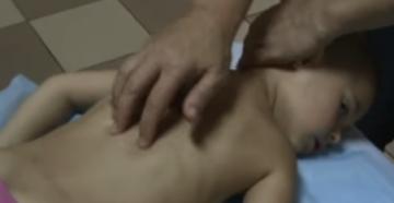 Детский массаж с 3 до 14 лет видео