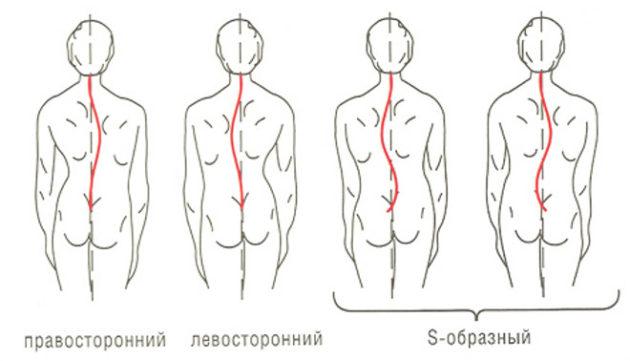 Главные методические рекомендации при профилактике сколиоза