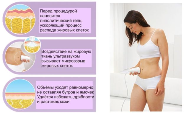 Процедура ультразвуковая кавитация