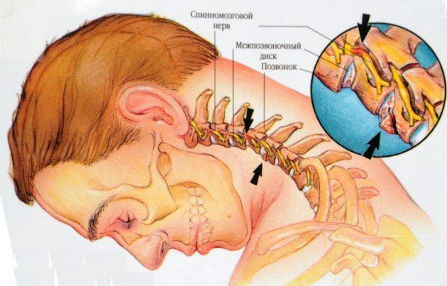 Массаж шеи при остеохондрозе шейного отдела