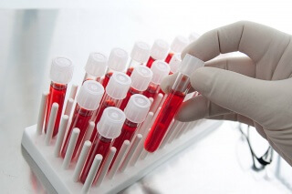 Определение прогестерона в крови