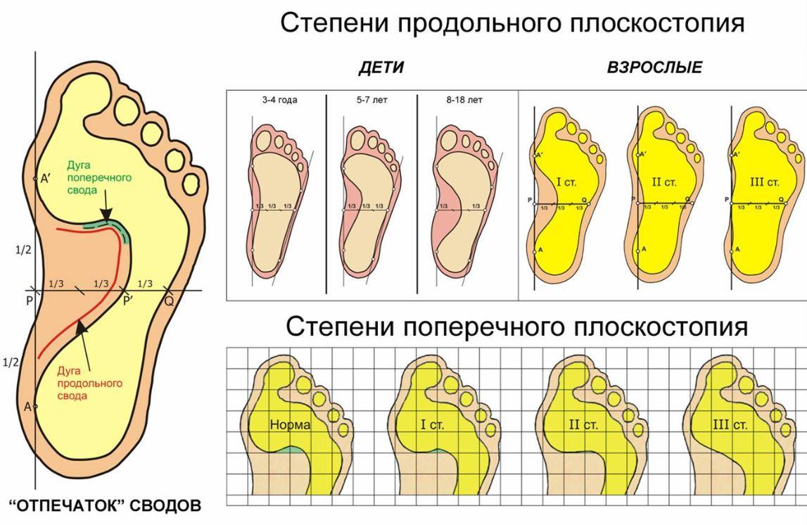 Как определить плоскостопие у ребенка