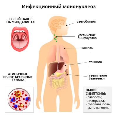 Инфекционный мононуклеоз у ребенка